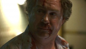 Egan Foote moments after a headbutt from Kiefer Sutherland.